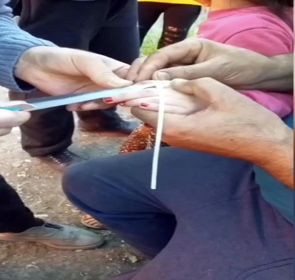 İstanbul'da parmağını sıkıştıran küçük kıza maket bıçaklı müdahale